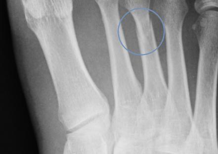 semne ale degetului rupt