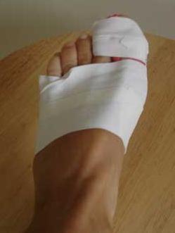 gips cu fractura de picioare