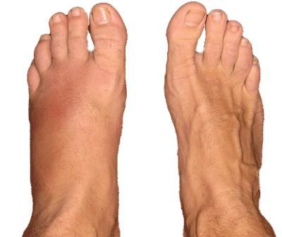 Fractura piciorului, fotografie