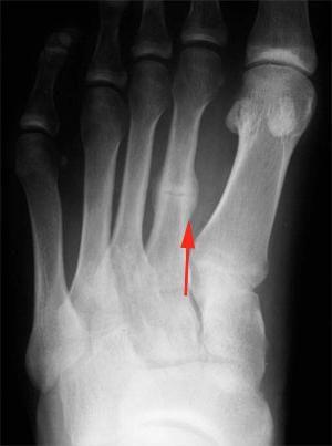 Fractură a oaselor piciorului