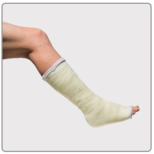 Fractura osului metatarsal al piciorului