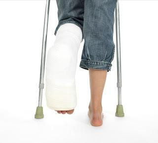 Fractura piciorului, tratamentul