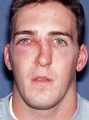 Fractură a nasului cu deplasare