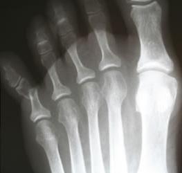 fracturile din tep