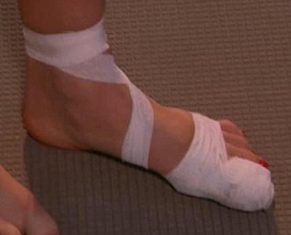 tratamentul fracturii la toe