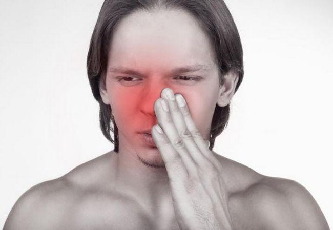 Fractura osului malar