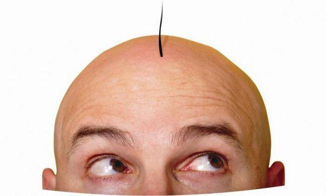 transplantul de păr