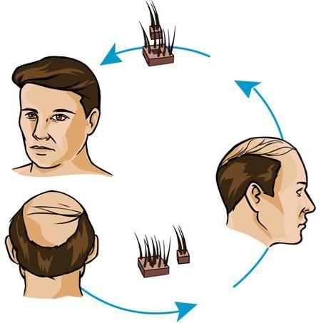 recenzii de transplant de păr
