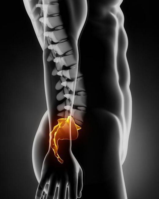 chist perineural la nivelul s2 al vertebrei