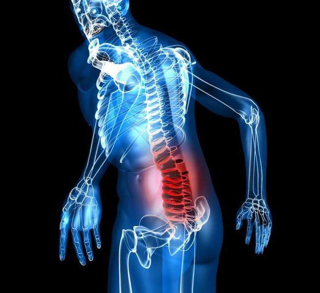 chist perineural la nivelul s2 vertebre cum să tratăm