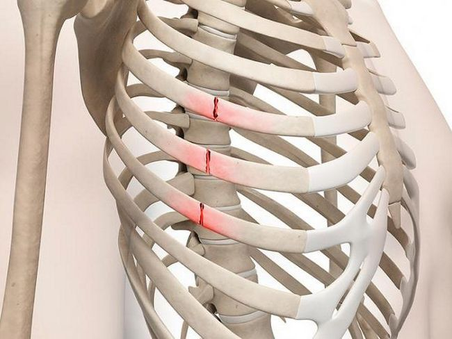 первая помощь при переломах ребра
