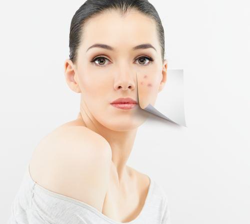 pete pigmentate pe fața cauzei tratamentului