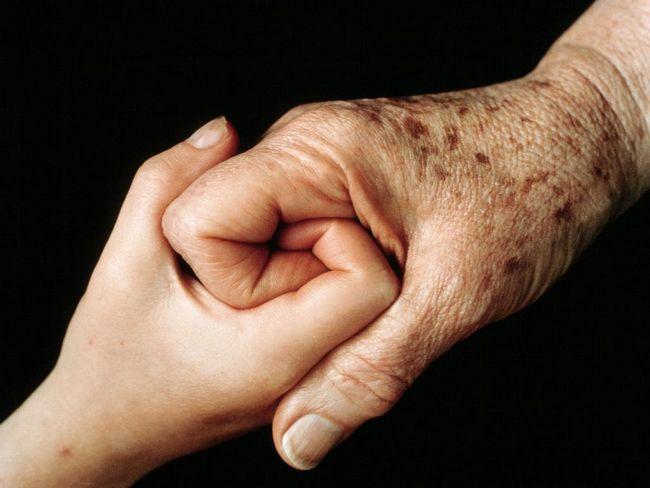 pete de pigment pe mâinile cauzei