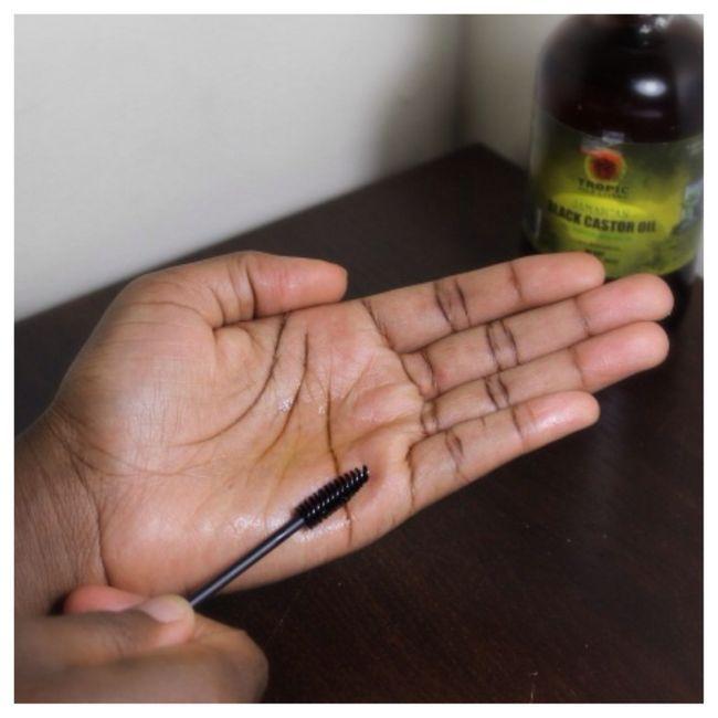 pete pigmentate pe mâini