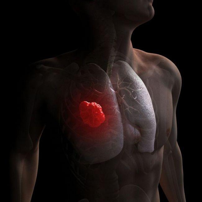 Pleurisia plămânilor cu simptome de oncologie