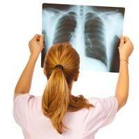 Tratamentul pleurezei plămânilor