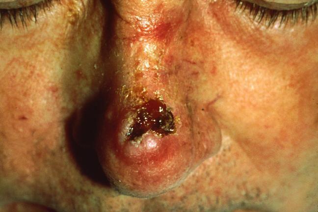 carcinom cu celule scuamoase
