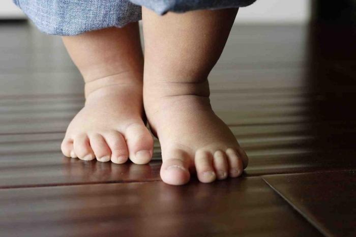 picioarele plate la un copil: tratament