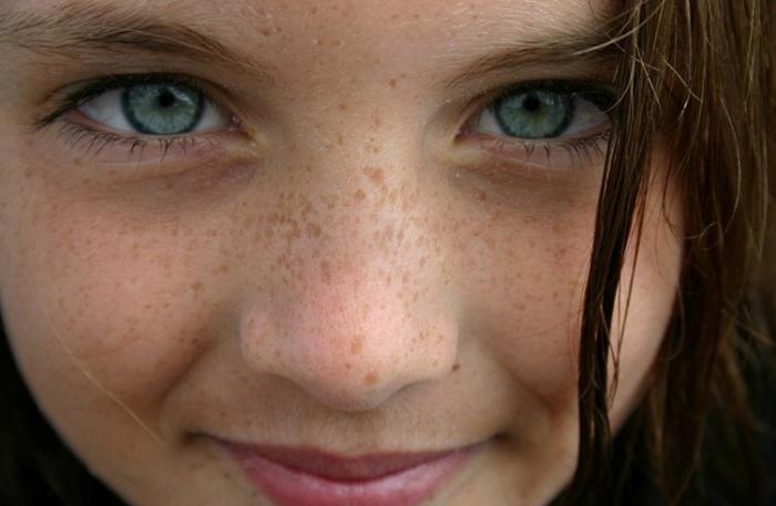 de ce pe fata sunt pete pigmentare
