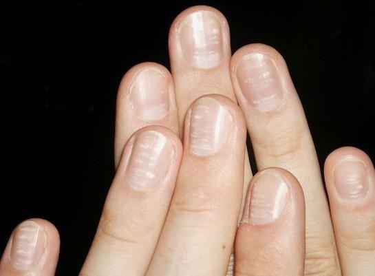 de ce erau petele unghii albe