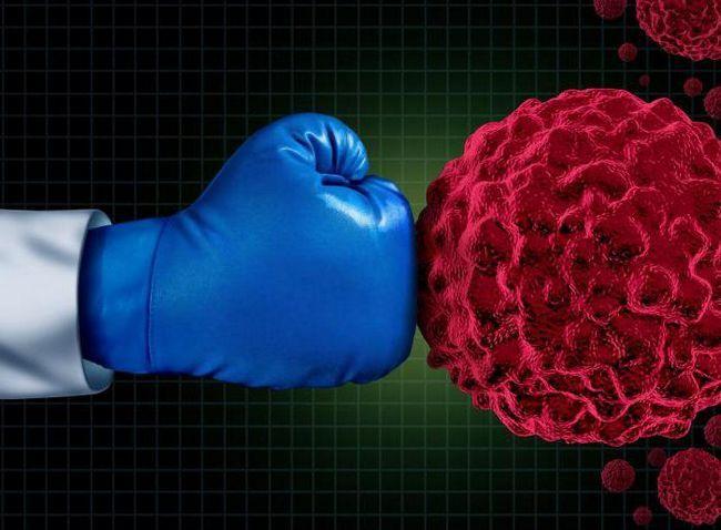 tumoare carcinom