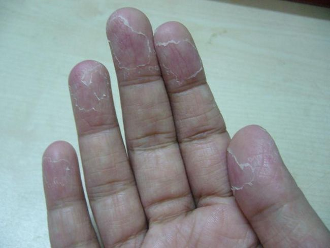 pielea copilului este acoperită cu piele pe degete