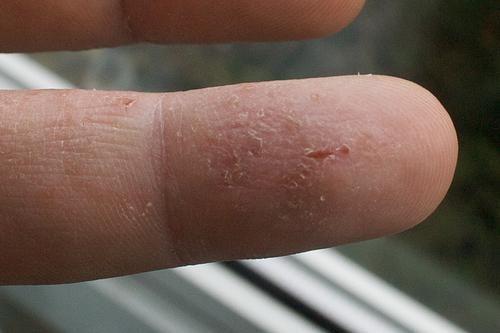 de ce un copil are pielea pe degete sau degetele de la picioare