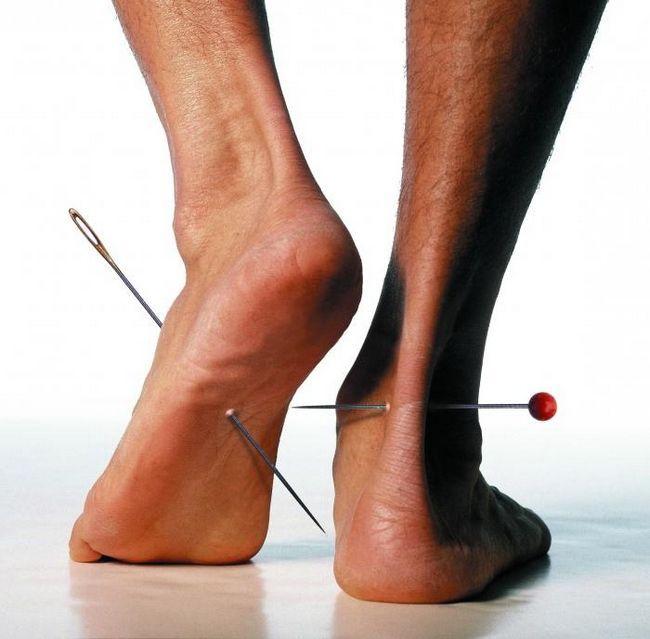 Senzație de furnicături în picioare