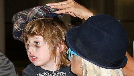 cauze de vânătăi sub ochii copilului