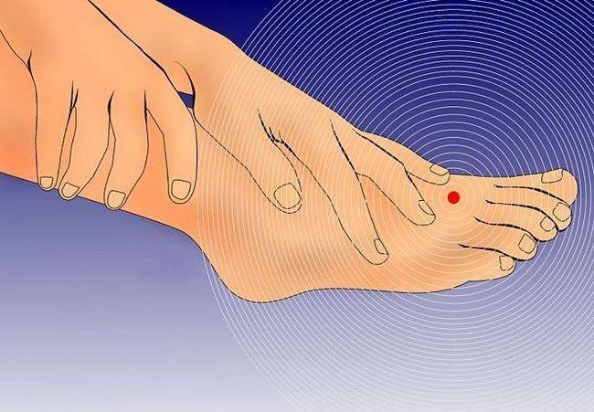 furnicături în mâini și amorțeală