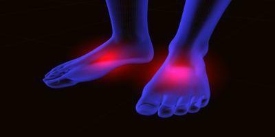 furnicaturi la picioarele cauzei