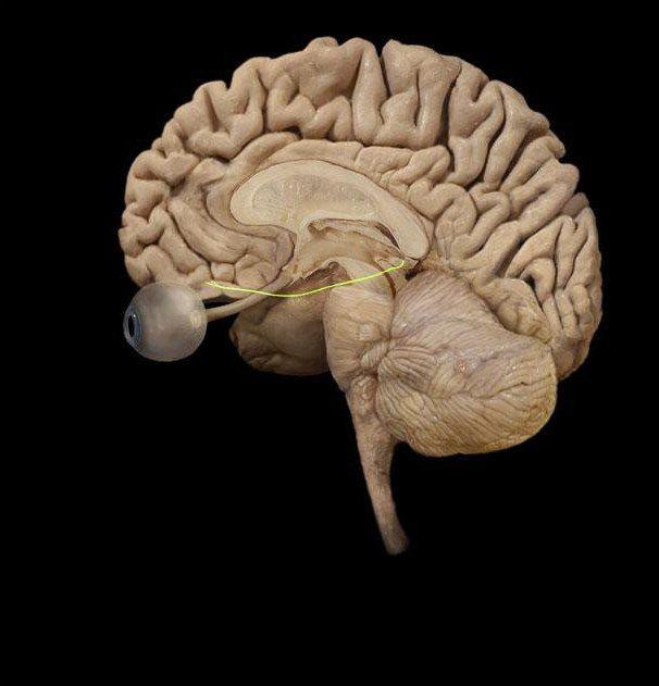 afectarea nervului oculomotor