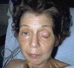 tratamentul nervului oculomotor