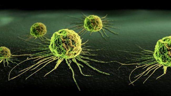 ultimul stadiu al cancerului