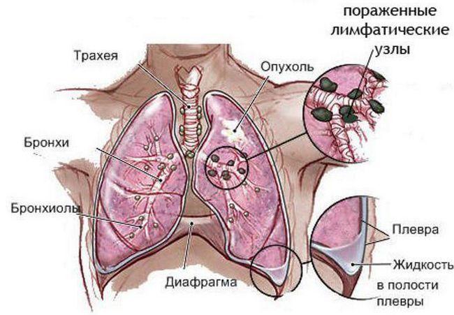 ultima etapă a cancerului pulmonar cât de mulți trăiesc