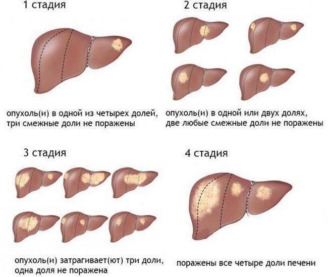 ultimul stadiu al cancerului hepatic