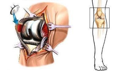 Proteza articulației genunchiului