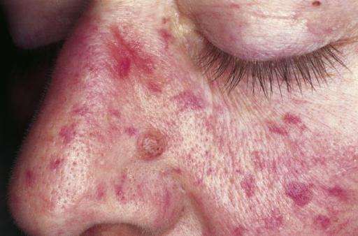 sindromul hemoragic