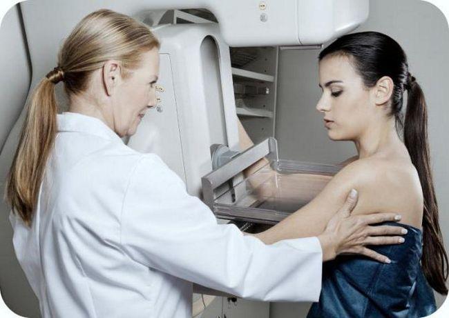 oncologi