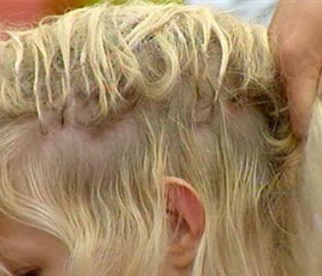 părul lui a căzut
