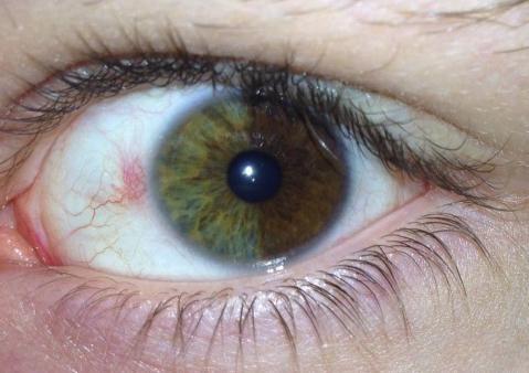 culoarea irisului ochiului