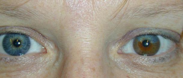 irisul ochiului fotografie