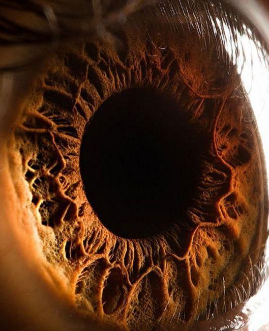 pete pe irisul ochiului