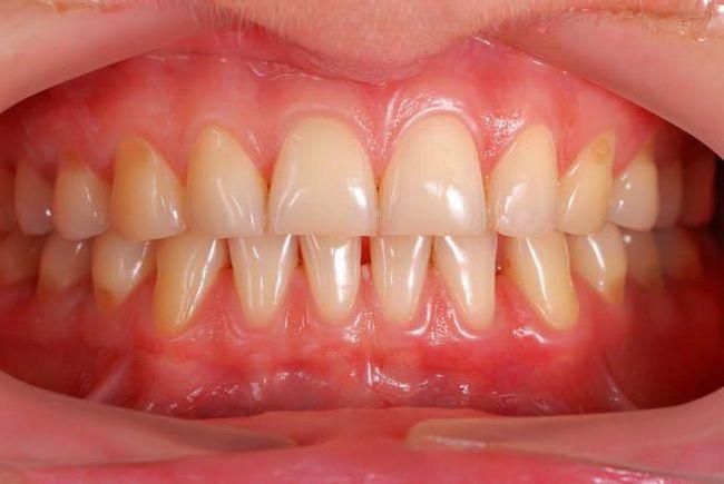 Simptomele cancerului de gumă Primele semne