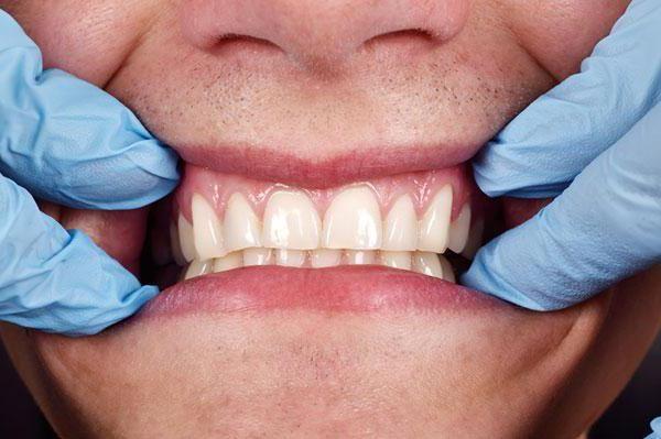 tratamentul cancerului de guma