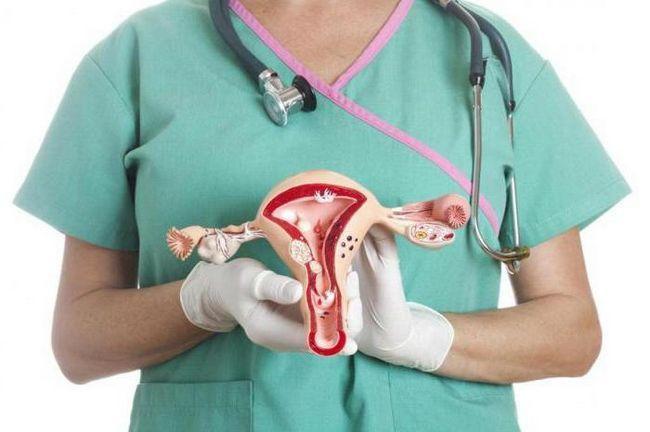 simptome ale cancerului ovarian la femei
