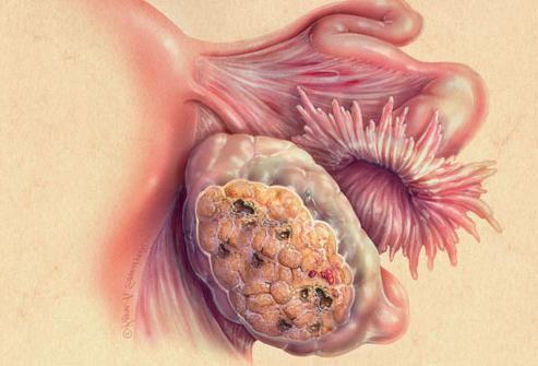 Cancerul ovarului