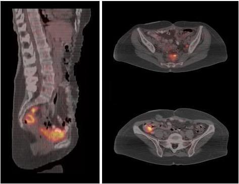 Simptomele cancerului ovarian