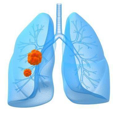 durata lungă de viață a cancerului pulmonar cu celule mici