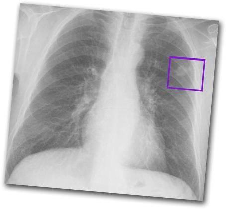 câți trăiesc cu cancer pulmonar
